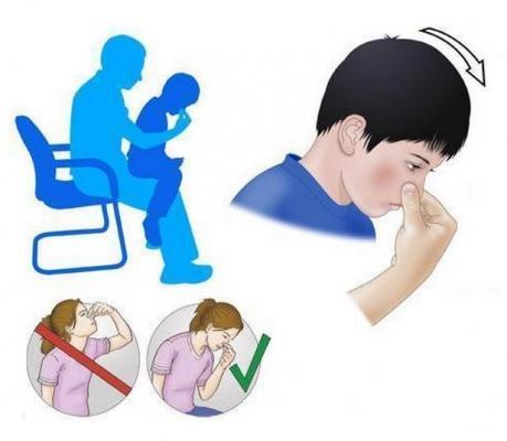 Действия при носовом кровотечении