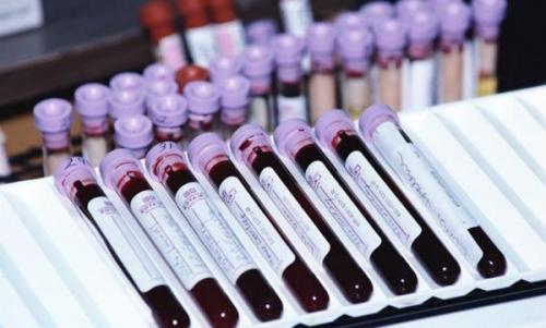 Общий белок: норма в крови