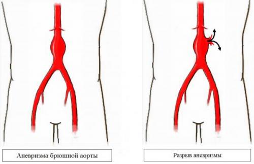 Аневризма брюшной аорты: симптомы