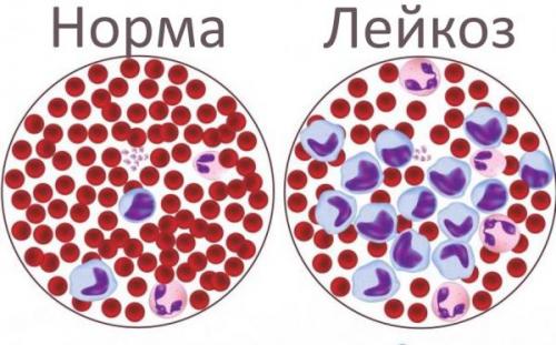 Острий лейкоз: что ето такое?