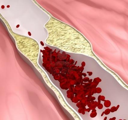 Хороший холестерин и плохой холестерин: норма