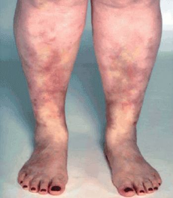 фото васкулит на ногах лечение
