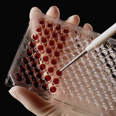 Повышенные моноциты в крови: что это значит?