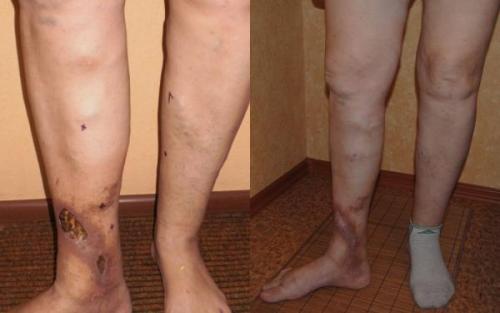 Венозная недостаточность нижних конечностей: симптомы, лечение, фото