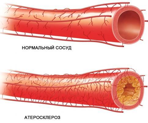 Склероз аорты сердца: что это такое?