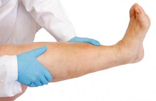 Лимфостаз нижних конечностей: медикаментозное лечение