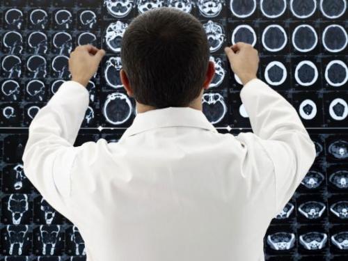 Мальформация сосудов головного мозга: что это такое?