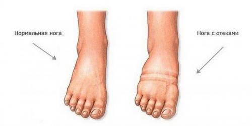 Отеки ног: причины и лечение