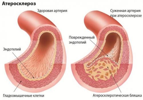 Склероз сосудов головного мозга: симптомы, лечение