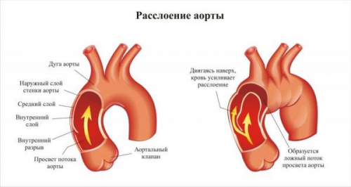 Расслоение аорты: симптомы