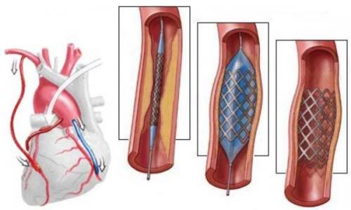 Шунтирование сосудов сердца: что ето такое, сколько живут?
