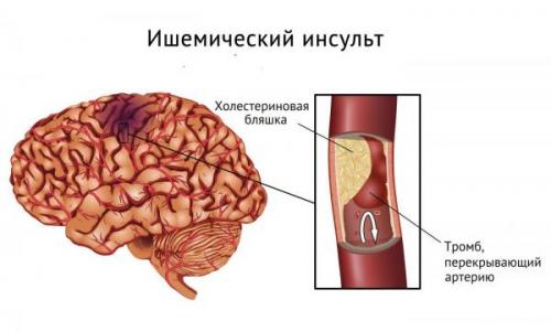 Инсульт ишемический и инсульт геморрагический
