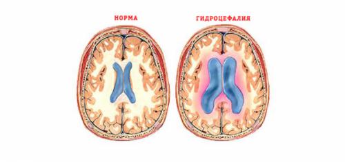 Наружная гидроцефалия головного мозга у взрослых: лечение