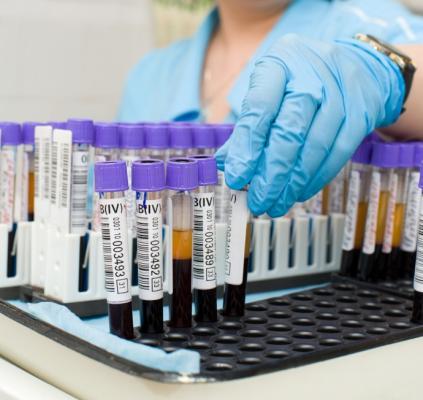Биохимический анализ крови: расшифровка, норма, таблица