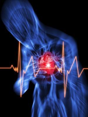 Синусовая аритмия сердца: что ето такое?