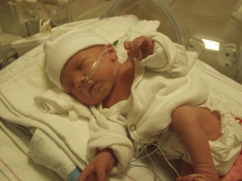 Билирубин у новорожденных: норма и предел, таблица