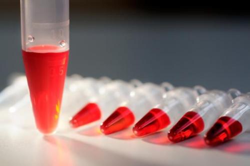 Мочевина: норма в крови у мужчин, женщин и детей