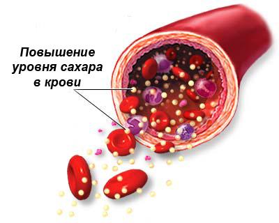 Сахар в крови 7: что это значит?