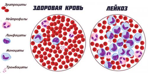 Острый лейкоз: симптомы, прогноз жизни