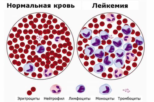 Рак крови: симптомы, сколько живут, фото