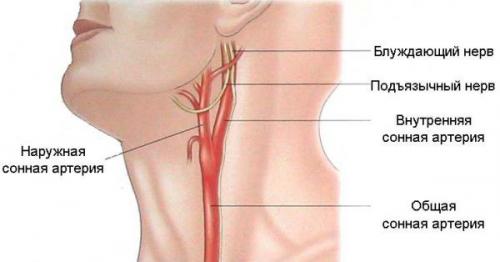 Как сделать сонную артерию