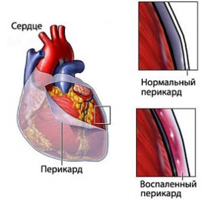Перикардит: симптомы и лечение