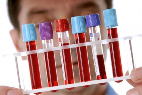 Мочевая кислота в крови: что это такое?