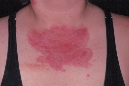 Системная красная волчанка: что это такое, симптомы, прогноз для жизни