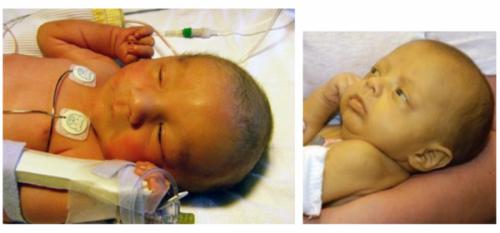 Желтуха у новорожденных: причины и последствия, симптомы, лечение, фото