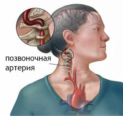 Синдром позвоночной артерии: симптомы и лечение