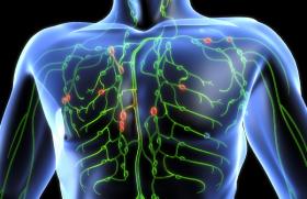 Рак лимфатической системы: симптомы, фото
