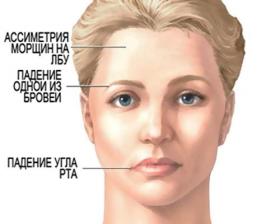 Симптомы инсульта у женщин, первая помощь