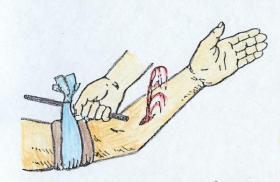 Способы временной остановки кровотечения