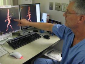Атеросклероз аорты: что это, как лечить?