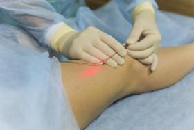 Как лечить варикоз на ногах у мужчин и женщин, фото