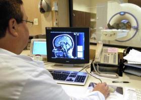 Что показывает МРТ головного мозга? Фото