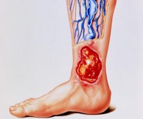 Трофические язвы на ногах: начальная стадия, чем и как лечить, фото