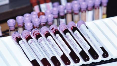 Кровь на анализ
