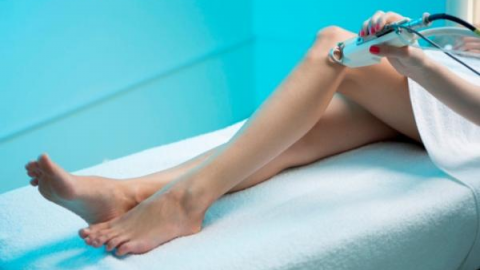 Лечение варикозного расширения вен на ногах