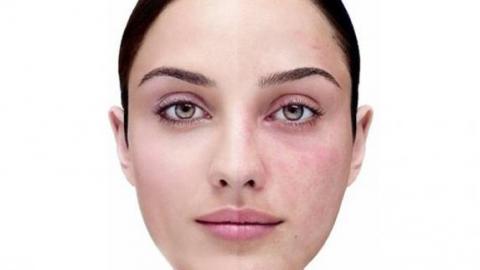Сосудистие звездочки на лице: причини, удаление, фото