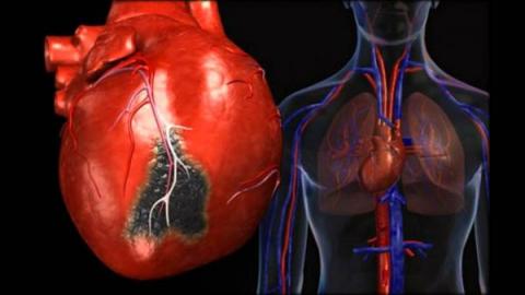 Какие есть болезни сердца