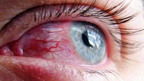 Лопнувшие сосуды в глазу