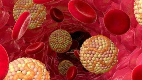 Липидний спектр крови: расшифровка