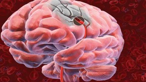 Нарушение кровообращения в мозге