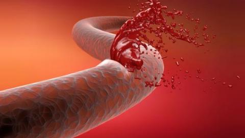 Кровяной сосуд