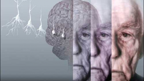 Сосудистая деменция