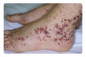 Проявление тромбоцитопении