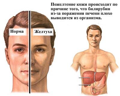 Желтуха: это какой гепатит?