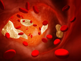 how is cholesterol transported in the blood