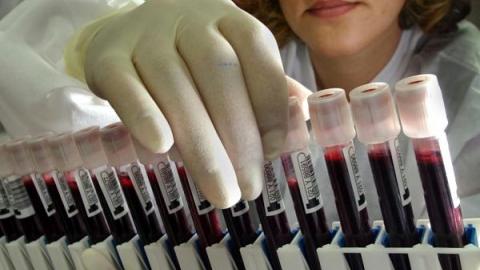 Анализы крови